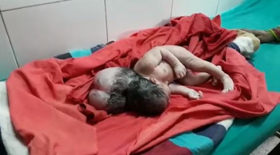 Nace niña con tres cabezas